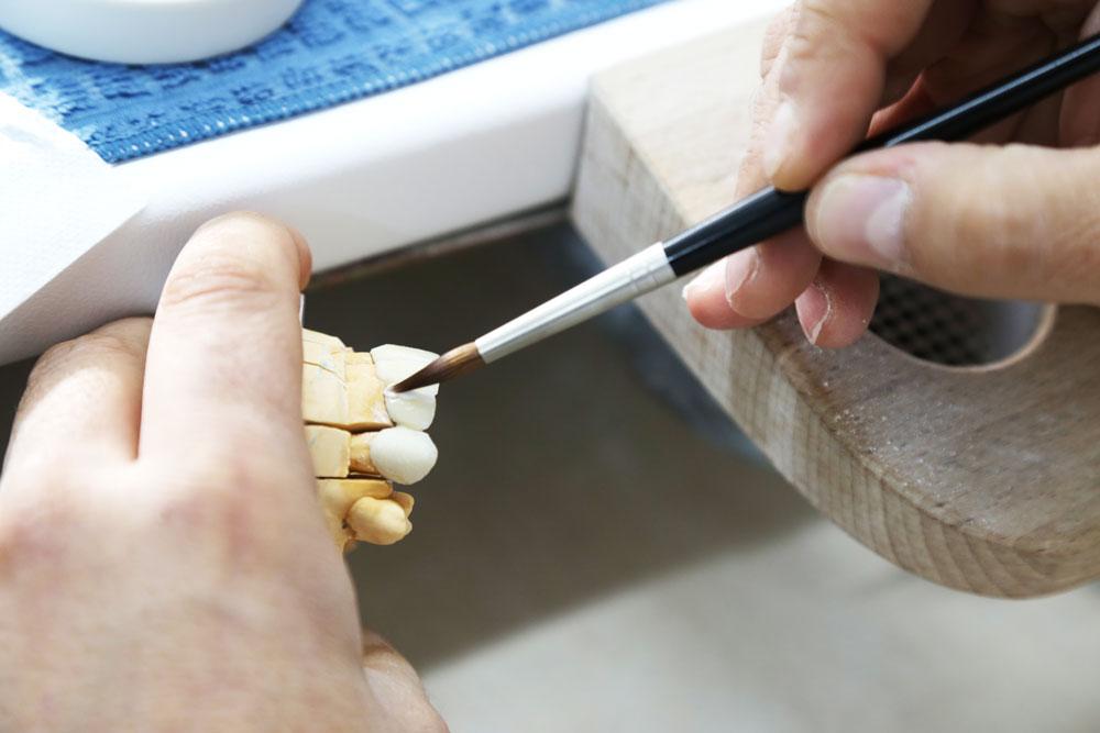 Mitos sobre los implantes dentales