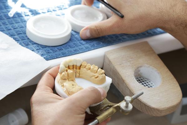 Implantes dentales en Proyecto Encinas