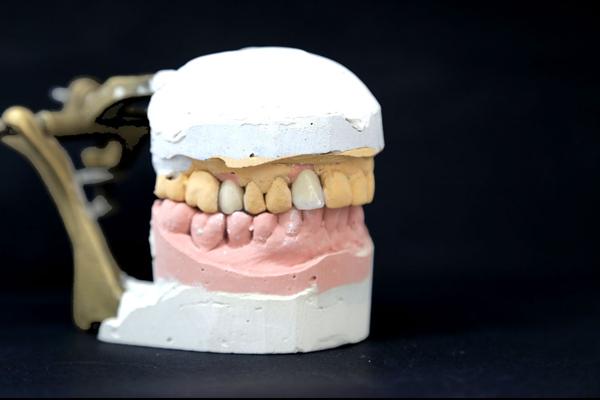laboratorio protésico dental Proyecto Encinas