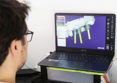 Proyecto-encinas-CAD-CAM