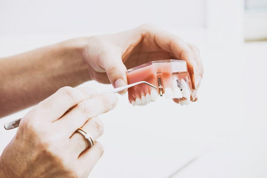 Implantología dental: duradera, segura y estética
